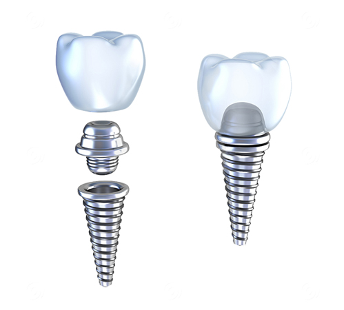 Fixed restoration - implants, crowns and bridges